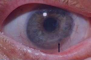 بیماری کراتیت, التهاب قرنیه چشم