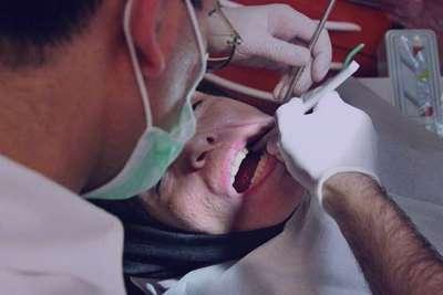 علائم سرطان دهان, عفونتهای ویروسی