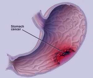 كاهش وزن, درمان سرطان معده