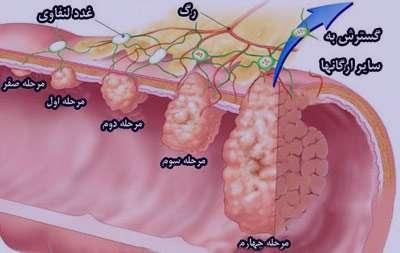 سرطان روده بزرگ, علایم پولیپ روده بزرگ