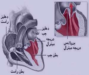 پرولاپس دریچه میترال, بیماریهای قلب و عروق