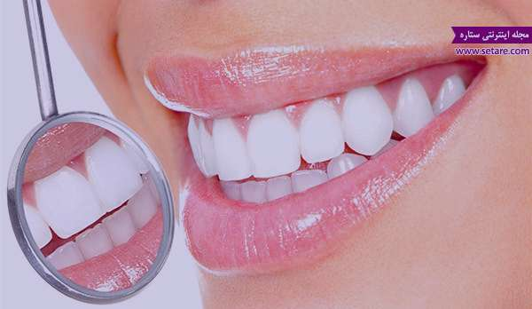 درمان خانگی دندان درد+درمان دندان درد شدید در منزل