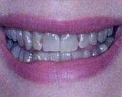 سیاهی دندان ،سیاهی دندان با قطره آهن،سیاهی دندان کودکان،سیاهی دندان جلو،سیاهی دندان نوزاد