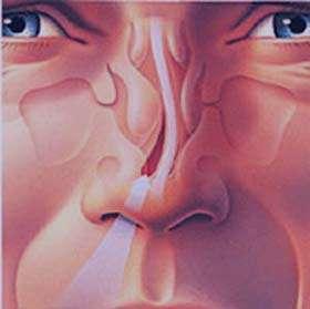 درمان و عوارض انحراف بینی چیست؟