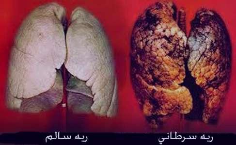 علایم و نشانه های سرطان ریه بدخیم و خوش خیم