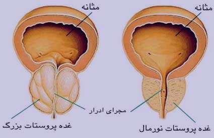 علت و علائم و درمان سرطان پروستات بدخیم و خوش خیم