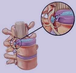 سیاتیک ، درمان سیاتیک , سیاتیک پا , سیاتیک کمر , سیاتیک چیست