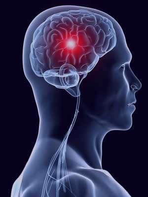 سکته مغزی ، درمان سکته مغزی , سکته مغزی خفیف