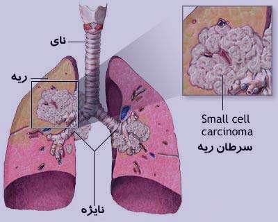 سرطان ریه , سرطان ریه علائم , سرطان ریه بدخیم , سرطان ریه درمان دارد