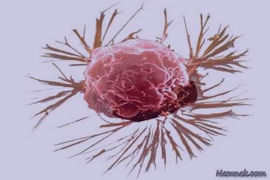 سرطان سینه , سرطان پستان , علت سرطان سینه , علائم سرطان سینه , عوارض سرطان سینه