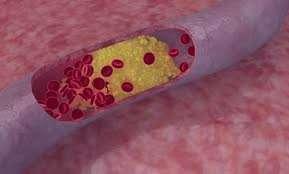 کلسترول خون ,کلسترول خون چیست , کلسترول خون درمان , کلسترول خون چقدر باید باشد , میزان و کاهش و درمان کلسترول خون