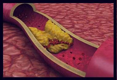 چربی خون , چربی خون بالا , چربی خون چیست , درمان چربی خون , علائم چربی خون , عوارض چربی خون