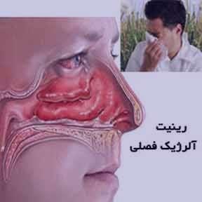 سیتریزین , ستیریزین 10 , ستیریزین برای کودکان , ستریزین , سیتریزین در بارداری , سیتریزین برای نوزادان , سیتریزین هگزال
