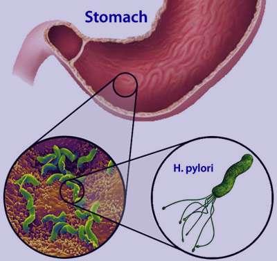 میکروب معده , درمان میکروب معده , علایم میکروب معده , بیماری میکروب معده