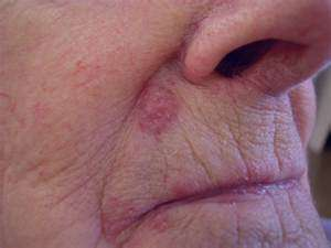 سرطان پوست , سرطان پوست صورت , سرطان پوست چیست , علائم سرطان پوست