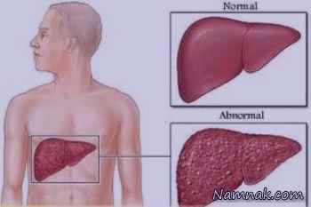 علائم و درمان کبد چرب گرید 1 و 2 و 3و 4+رزیم غذایی برای کبد چرب