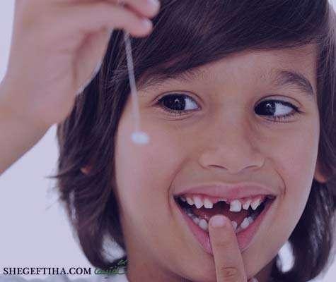 تتعبیر خواب افتادن دندان آسیاب , تعبیرخواب دندان خراب , دندان در خواب دیدن , تعبیرخواب دندان شکسته