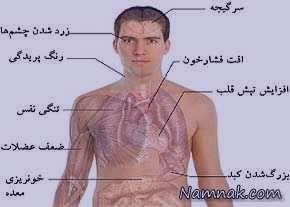 کم خونی , کم خونی مینور , کم خونی داسی شکل , کم خونی نوزادان , کم خونی چیست , درمان و علائم و عوارض کم خونی