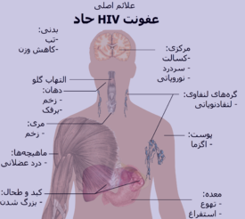 ایدز و علائم آن , ایدز , درمان ایدز , آزمایش ایدز