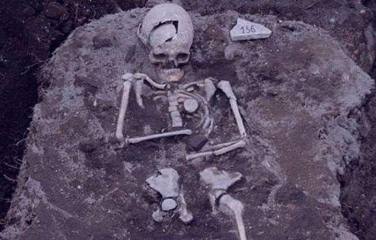 تعبیر خواب استخوان , تعبیر خواب استخوان مرده , تعبیر خواب استخوان بزرگ , خواب استخوان دیدن