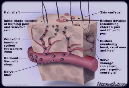 زونا , بیماری زونا , علت و علائم زونا , درمان زونا