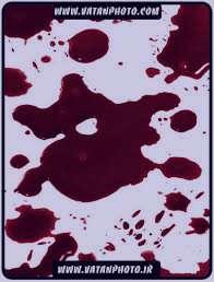 تعبیر خواب خون , تعبیر خواب خون دماغ , تعبیر خواب خون امدن از سر , تعبیر خواب خون دماغ شدن