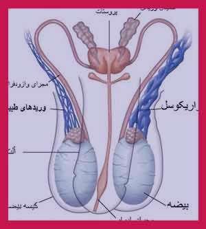 واریکوسل , واریکوسل چیست , واریکوسل گرید 1 , علائم واریکوسل , راه درمان واریکوسل