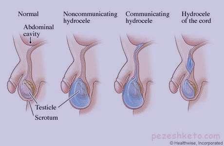 درد بیضه سمت چپ , علل درد بیضه سمت چپ , درمان درد بیضه سمت چپ