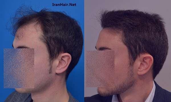 روش های جدید کاشت مو در ایران