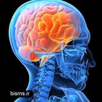 سکته مغزی , سکته مغزی و کما , سکته مغزی علائم , سکته مغزی خفیف