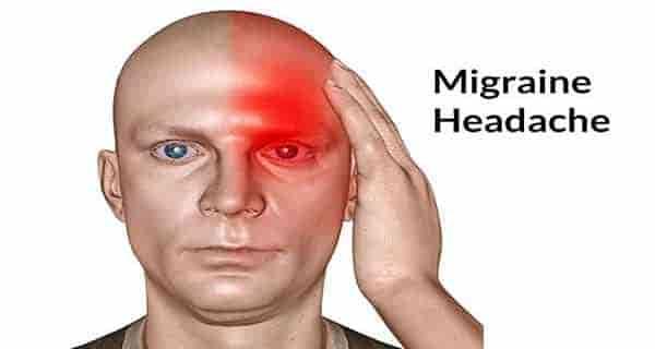 میگرن,میگرن چشمی,میگرن چیست,میگرن درمان,میگرن چشمی چیست, میگرن و درمان آن