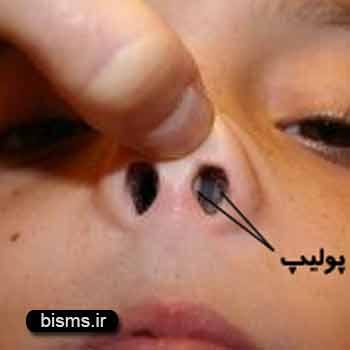 پولیپ بینی ، درمان پولیپ بینی , پولیپ بینی چیست ، پولیپ بینی در کودکان