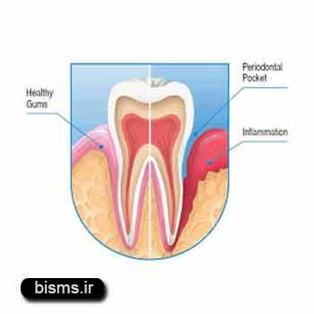 آبسه دندان , آبسه دندان عقل , آبسه دندان عصب کشی شده , آبسه دندان چیست