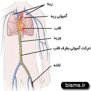علت و علائم و درمان بیماری آمبولی ریه بعد از زایمان چیست