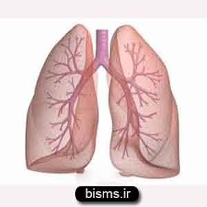آمبولی , آمبولی ریه , آمبولی چیست , آمبولی ریه چیست