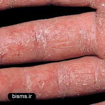 اگزما،درمان اگزما,بیماری اگزما چیست،اگزما ،اگزما پوستی،اگزما چیست،اگزما دست،اگزما صورت