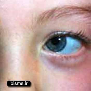 انحراف چشم ،انحراف چشم در نوزادان،انحراف چشم نوزادان،انحراف چشم در بزرگسالان