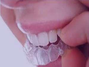 درمان حساسیت دندانی