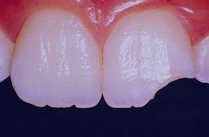 با دندان شکسته و یا کنده شده چه باید کرد؟