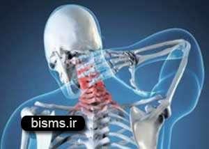 علت و درمان گیاهی آرتروز گردن و سردرد و کتف چیست