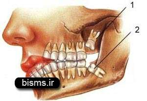 مواظب عوارض دندان عقل باشید