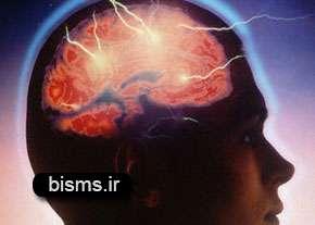 نشانههای سكته مغزی