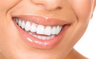 انواع سفیدكنندههای دندان