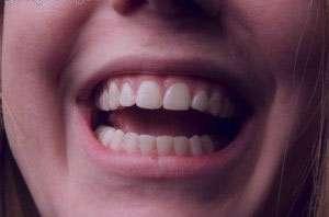 پیشگیری از مشکلات دهانی دندانی