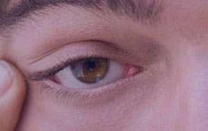 علت و درمان تیک عصبی چشم و پلک چشم در کودکان و بزرگسالان