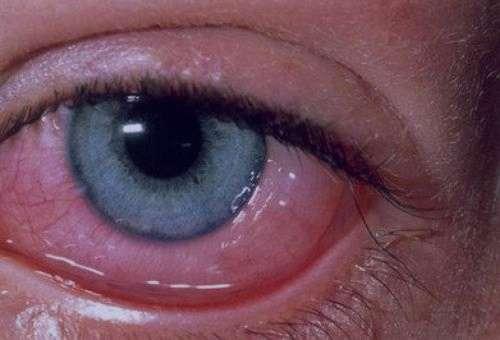 علائم و درمان عفونت چشم و تاری دید در کودکان و نوزاد