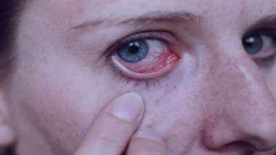 آلرژی چشمی ،آلرژی چشمی چیست،آلرژی چشمی کودکان،آلرژی چشمی و تاری دید