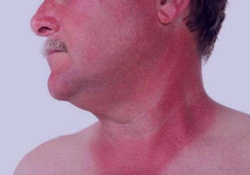 ۱۵درمان خانگی برای آفتاب سوختگی