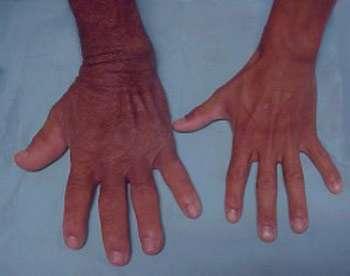 آکرومگالی چیست، چه علائمی دارد و چگونه درمان می شود؟