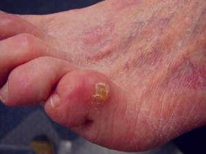 علت و علائم و درمان میخچه دست و پا در طب سنتی چیست